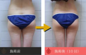 痩身の施術例C
