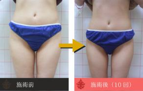 痩身の施術例B