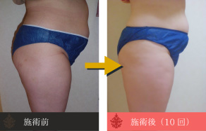 痩身の施術例A